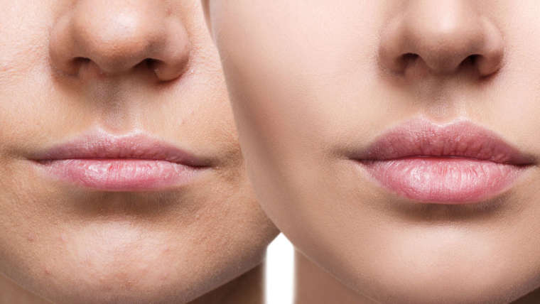Thinking About Investing in Botox  Dysport in Coconut Creek?