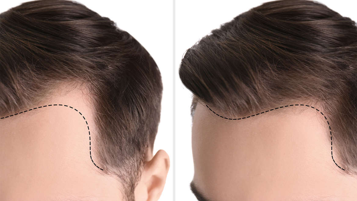What Is PRP Hair Restoration at East West Physicians?